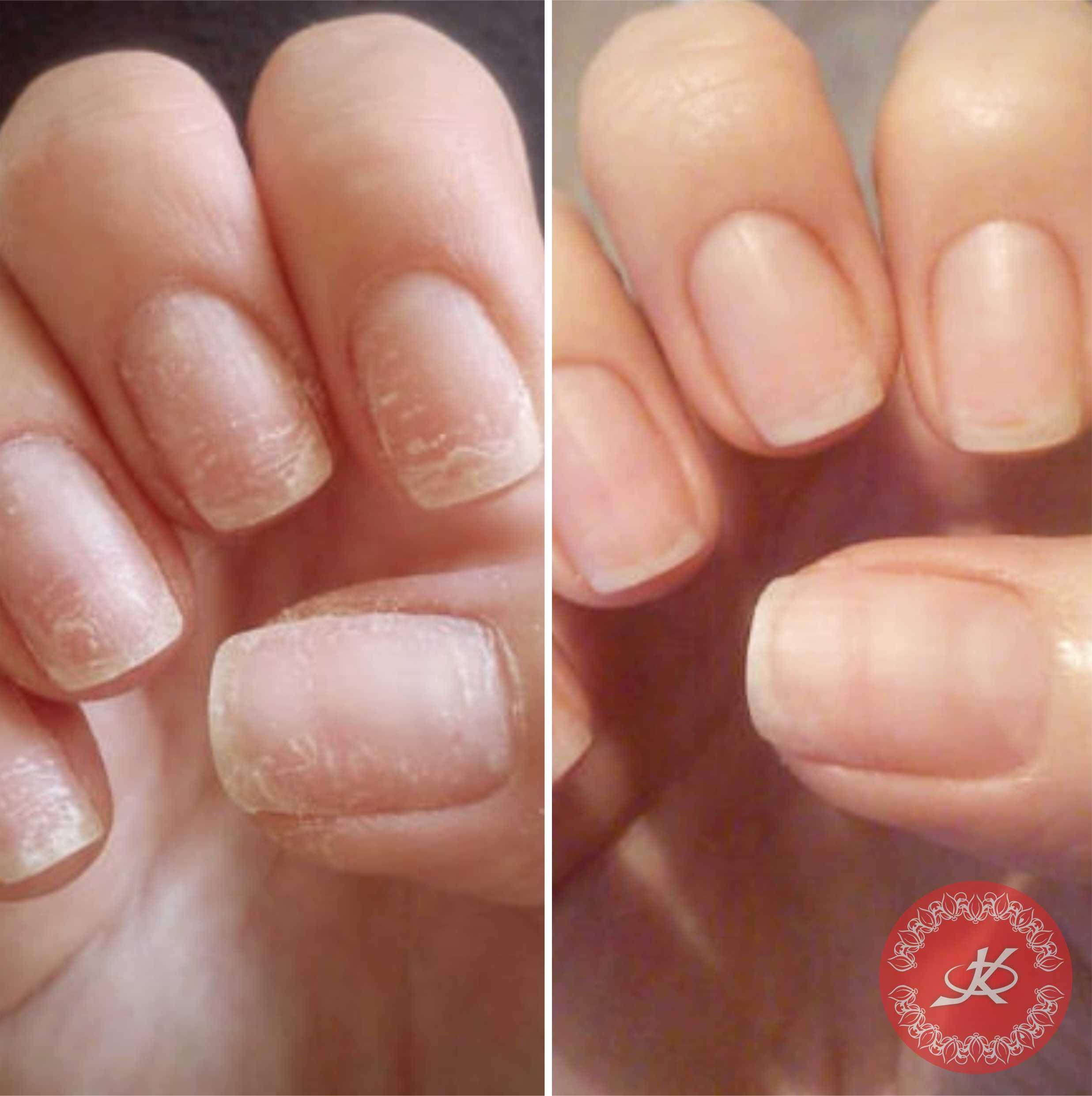 Чем лечить трещину на пальце руки у ногтя